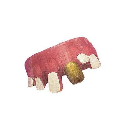 (파티용품) 엽기 이빨 - 덧니난 금이빨